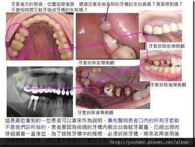 多數智齒並不適合做為牙橋的支台齒