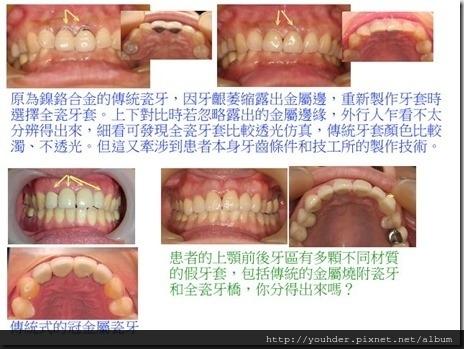 傳統金屬燒附瓷牙和全瓷牙套之比較
