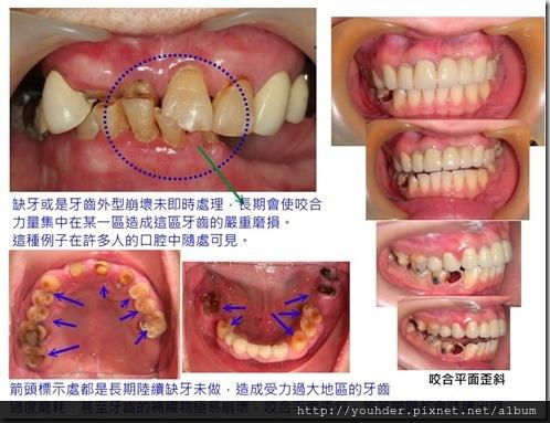 缺牙未處理,造成其他區牙齒受力過大而磨耗嚴重