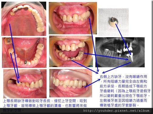 缺牙造成原有假牙壽命變短