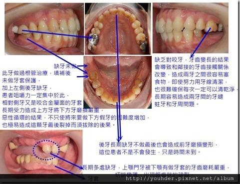 缺牙不做造成對咬牙延長