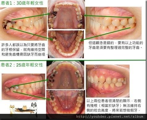 缺牙導致牙齒咬合高度下降