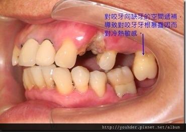缺牙後遺症2