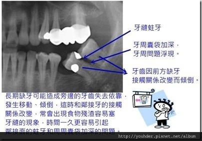 缺牙導致牙齒接觸關係改變。