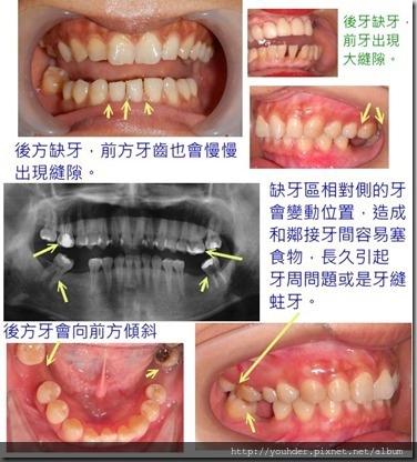 缺牙後遺症