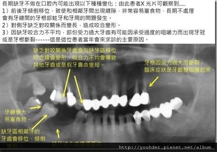 缺牙過久的後遺症實例