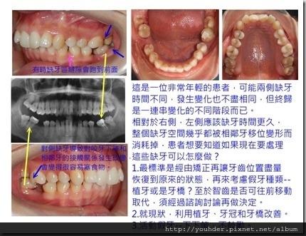 缺牙過久的後遺症實例3