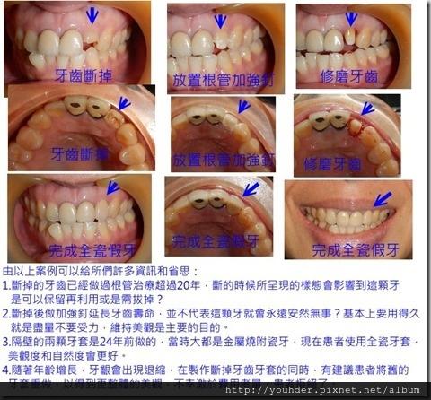 單顆斷牙做全瓷牙套