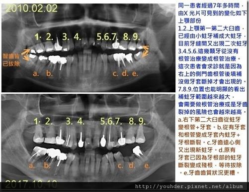 未命名 - 案例2--X 光的變化