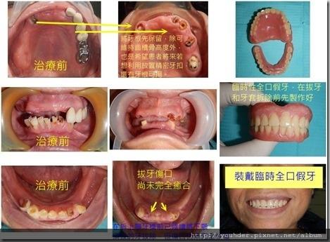 臨時全口假牙1
