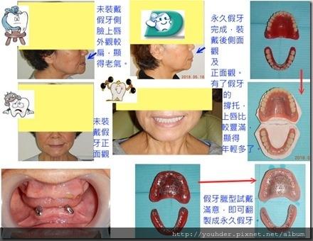 假牙製作術前術後對照5
