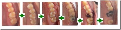 未命名 - 4蛀牙的演變