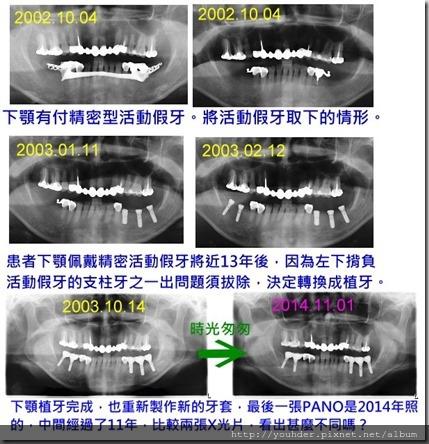 患者多年追蹤X光片