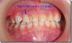門齒的小牙套1