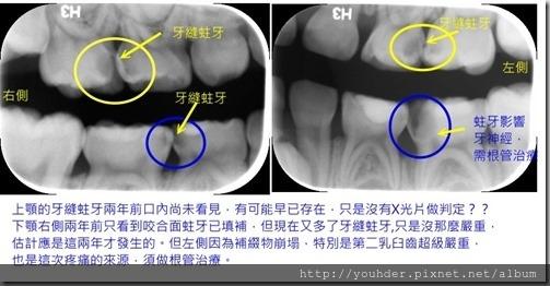 同一患者從2歲開始的補牙追蹤1