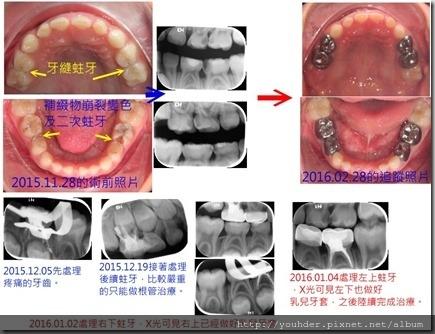同一患者從2歲開始的補牙追蹤3
