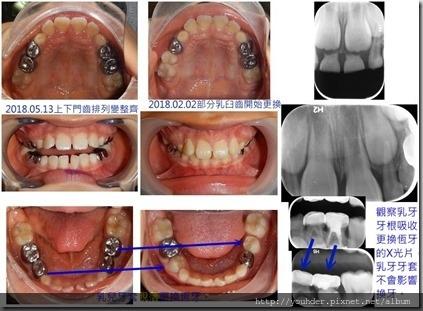 混合齒列期有關牙齒換牙排列問題4.5jpg