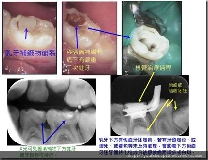 未命名 乳牙根管治療
