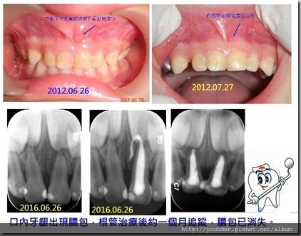 乳牙根管問題