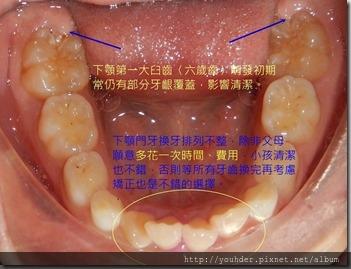 牙齦覆蓋齒面