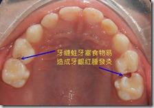 乳牙牙縫蛀牙〈上顎〉1