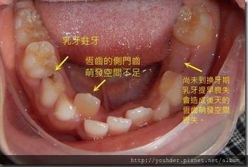 1乳牙萌出空間不足 乳牙蛀牙