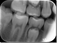 乳臼齒牙根吸收不完全阻礙順利換牙