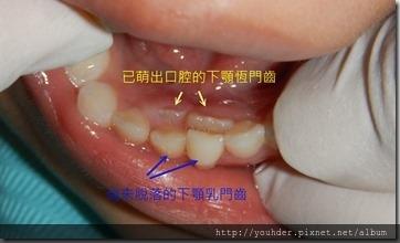 換牙期牙齒排列問題