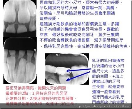 換牙期的問題