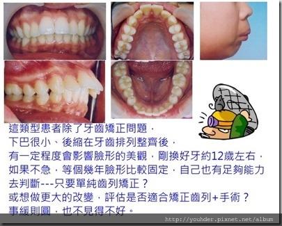 牙齒先天的臉形會影響矯正結果