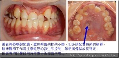 齒列矯正配合手術