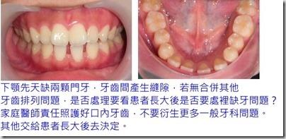 先天缺下顎門牙