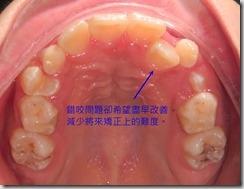 乳牙期的矯正考量-4