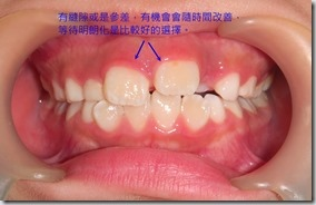 乳牙期的矯正考量1