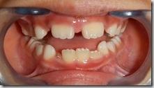 換牙期牙齒排列問題--醜小鴨時期