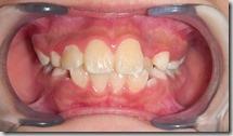 矯正期牙齒排列問題-1