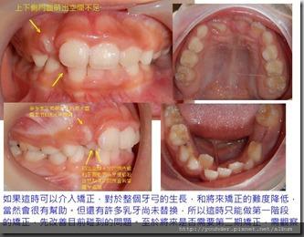 牙齒排列問題2