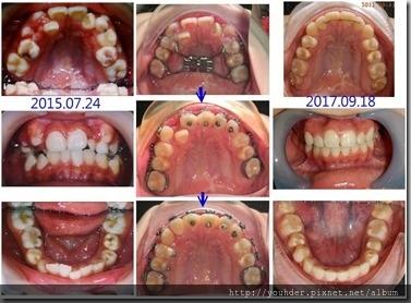 牙齒排列問題1