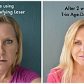 before-and-after-tria-2-weeks
