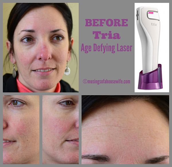BEFORE-Tria-Age-Defying-Laser-620x603