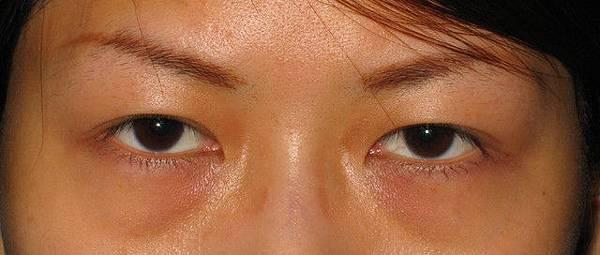 案例照片-眼袋內開+補脂術前術後