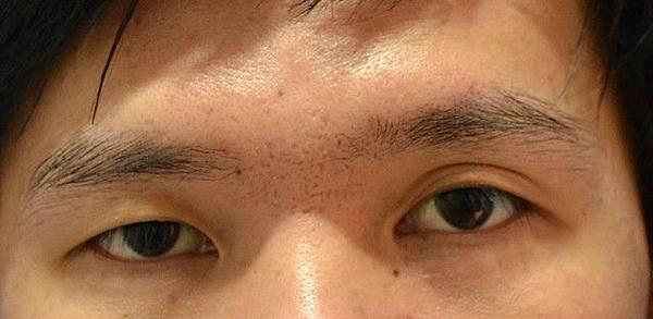 案例照片,雙眼皮手術-蝴蝶結縫法術 雙眼不對稱術前術