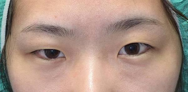案例照片,雙眼皮手術-蝴蝶結縫法術