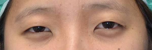 【案例照片】蘇毓彬醫師│雙眼皮手術-割雙眼皮+開眼頭術前術後1個月