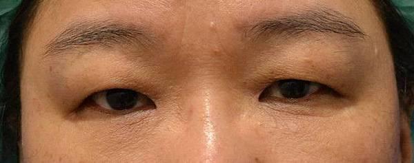 【案例照片】蘇毓彬醫師-眼皮下垂術前術後2個月