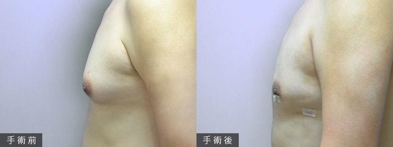 改善並治療女乳症,女乳症手術前,不可不知的事!|蘇毓彬醫師.jpg