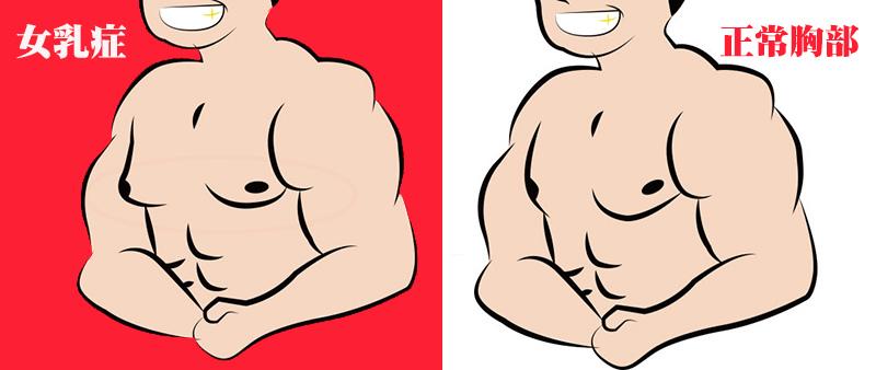 如何分辨【女乳症】與【一般男性的胸部】?兩張圖教你判斷女乳症,認識女乳症的胸部症狀|高雄蘇毓彬醫師.jpg