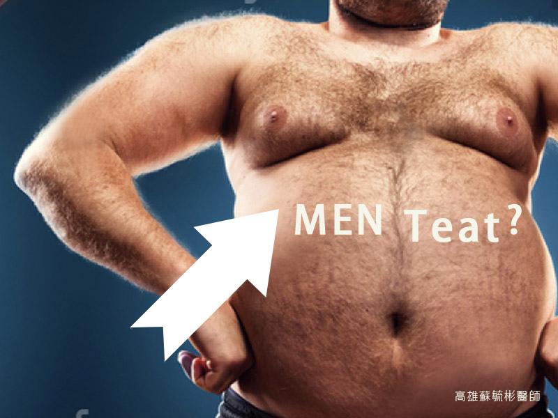 【女乳症手術】改善男生又尖又凸的胸部,減少並消除胸部脂肪,復原成平坦胸膛|高雄蘇毓彬醫師