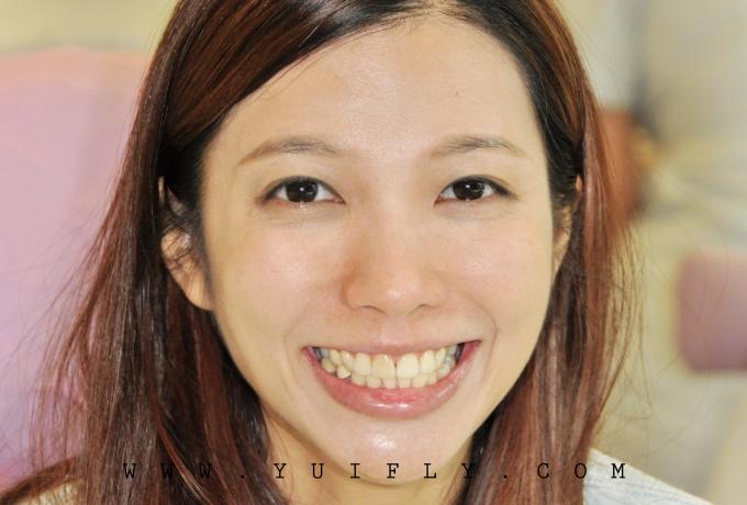悅庭牙醫_11.jpg