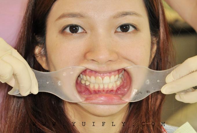 悅庭牙醫_15.jpg